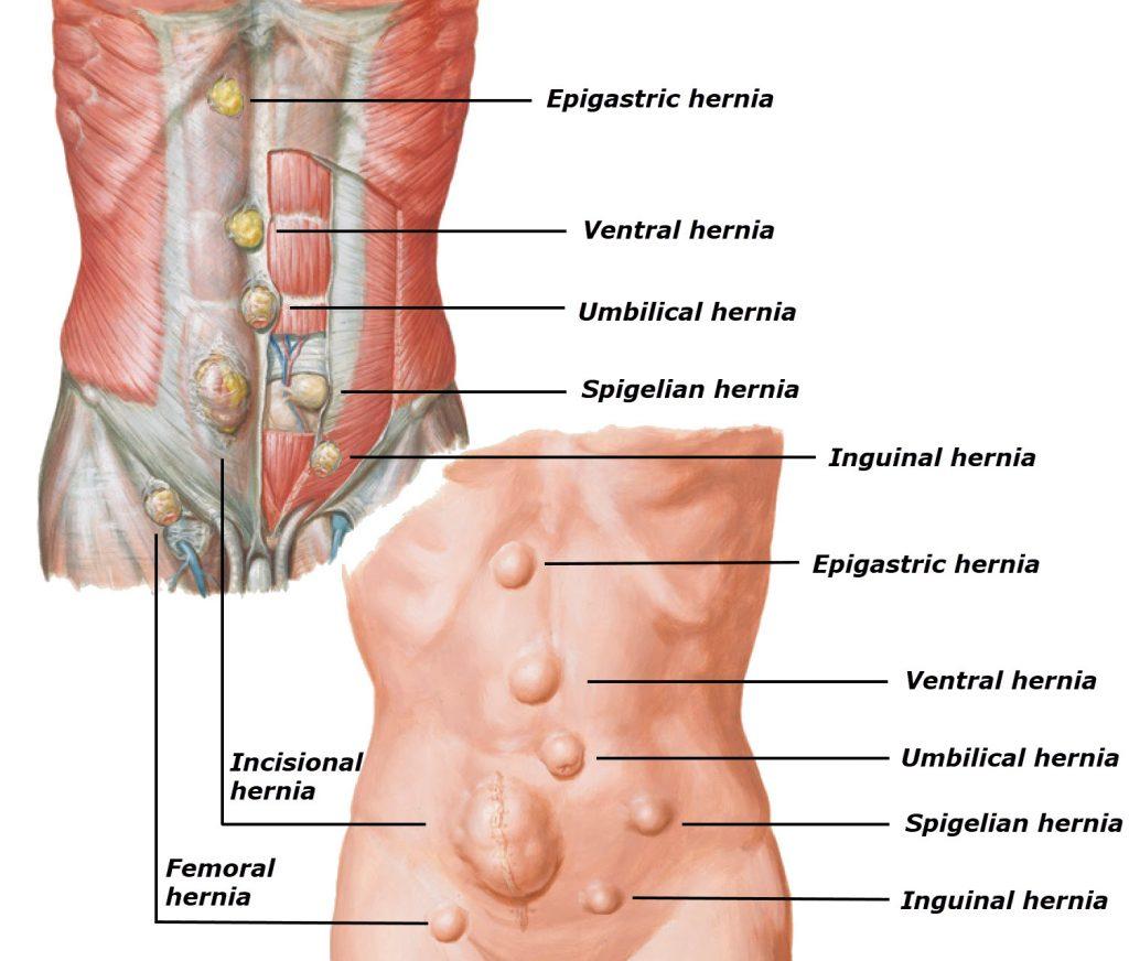 Hernia Surgery – Dr Allan Mekisic – Breast Surgery
